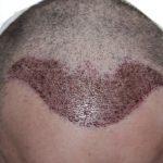 A doua zi dupa implantul de par