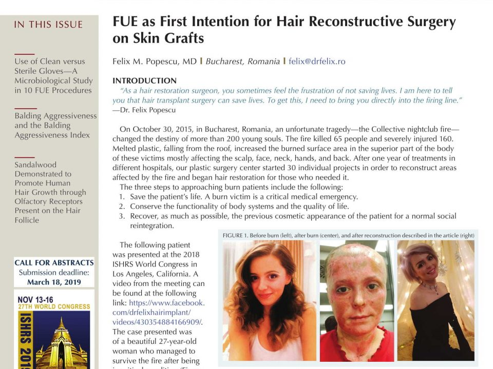 hair transplant forum international