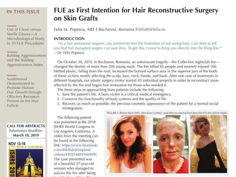 hair transplant forum international