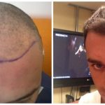 Hair transplant results - FUE surgery