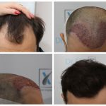 beneficiile implantului de par