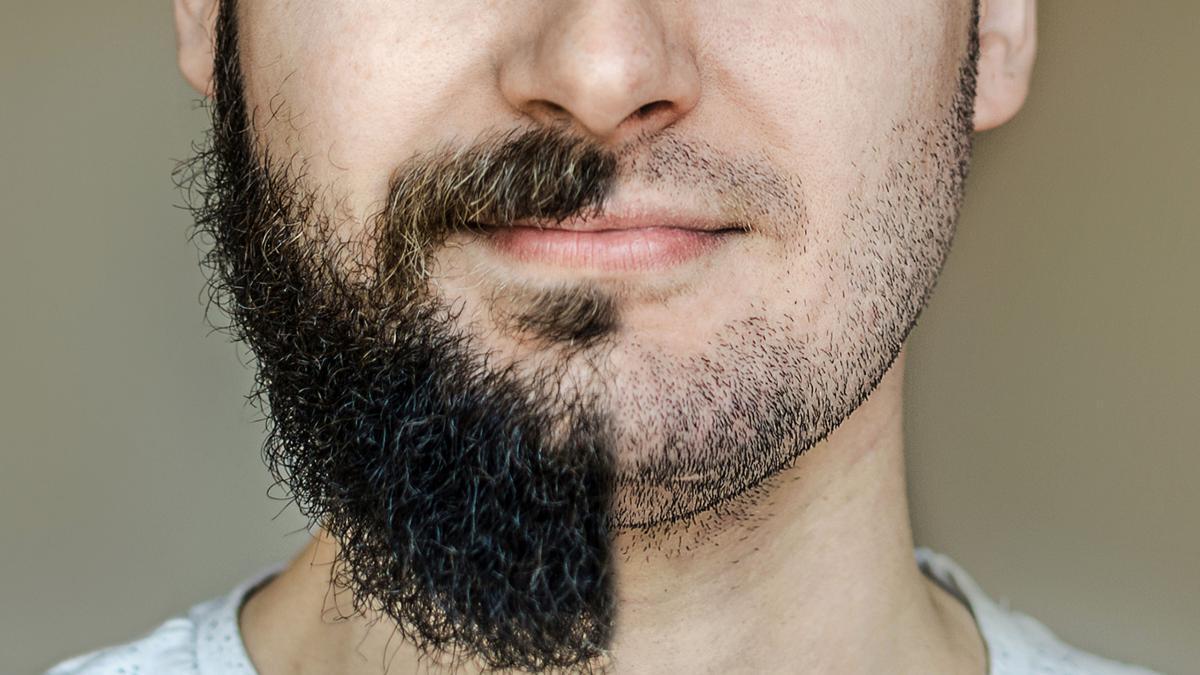 implant de par pentru barba