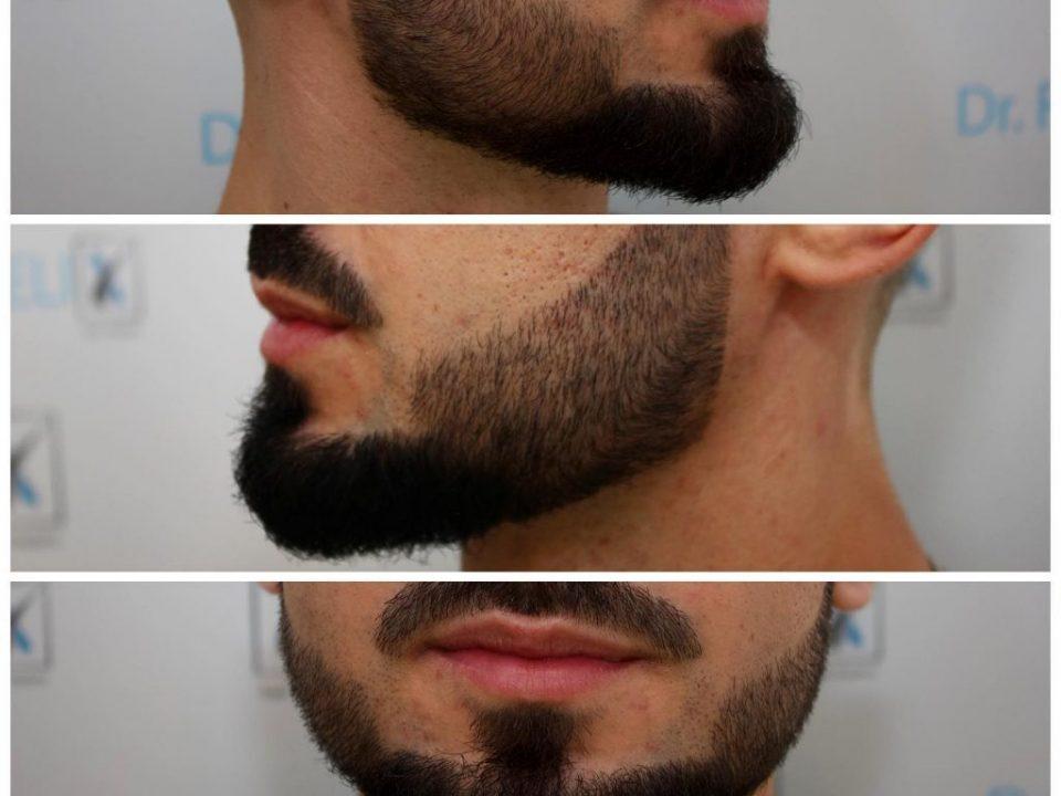 implant de barba si mustata